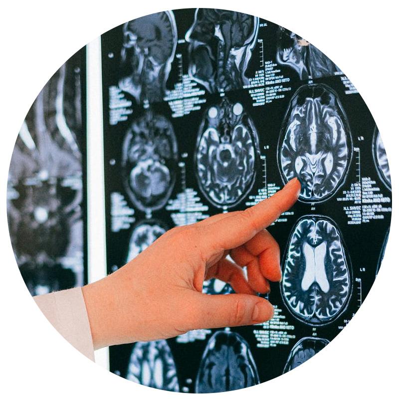 La liaison entre cerveau et intestins